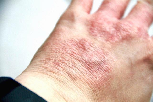 Bad Eczema